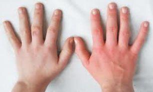 دست چپ و راست