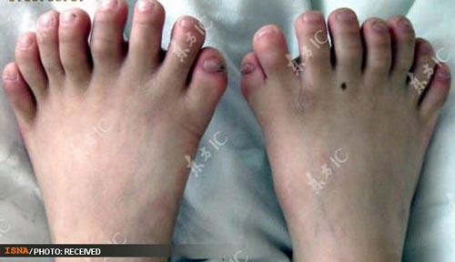 انگشتان عجیب