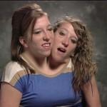 دختران دو سر به 22 سالگی رسیدند+تصاویر
