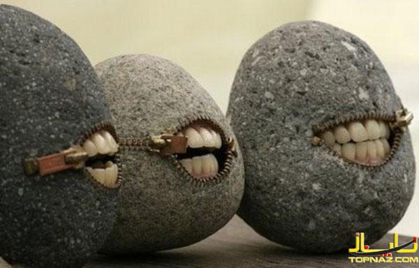 جواهرات دندانی