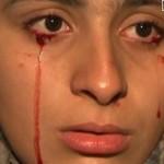 دختری که خون و سنگ گریه می کند+عکس