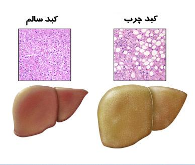 بیماری کبد چرب