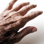 بیماری پارکینسون چیست؟علل و درمان