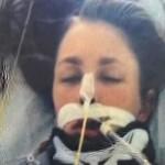 زنی پس از جدا شدن سرش زنده ماند+عکس