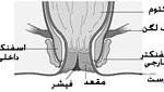 3 نوع بیماری شایع مقعد و راه درمان