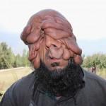 این مرد صورت ندارد! +تصاویر