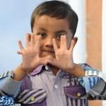 این پسر عجیب ترین دست و پاها را دارد +تصاویر