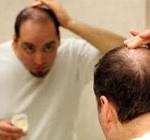 4 روش درمانی خانگی برای ریزش مو