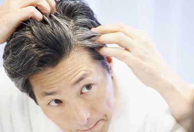 جلوگیری از سفیدی مو