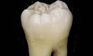 خرابی دندان,سلامت دندان