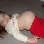 دختر 10 ساله باردار شد +عکس