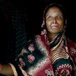 ازدواج زن مظلوم با همسر خیانتکار اسیدپاش! +عکس