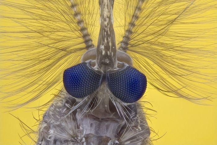 عکس میکروسکوپی