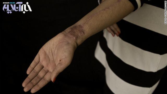 وب سایت شبکه خبری سی ان ان در تازه ترین گزارش نوشته است که عایشه محمد زاد، قرار است دوباره تحت عمل جراحی قرار گیرد بلکه چهره او تا اندازه ای شبیه به روز اولش شود.