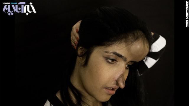 از سال 2010 که تصویر او با دماغ بریده روی مجله تایم منتشر شد چندین عمل جراحی پلاستیک روی صورت او انجام گرفته که هر کدام با مشکلات خاصی همراه بوده است.