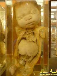 اجساد جنین در موزه علوم پزشکی بانکوک+18