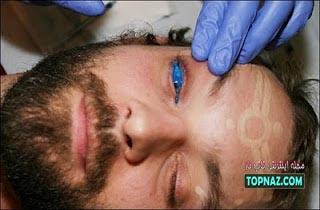 خالکوبی چشم
