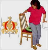 درد دنبالچه یا Coccydynia و درمان آن