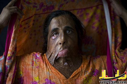 عکسهایی غم انگیز از زنان قربانی اسیدپاشی