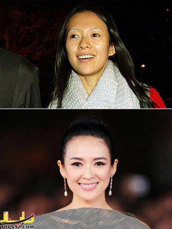 قبل و بعد آرایش