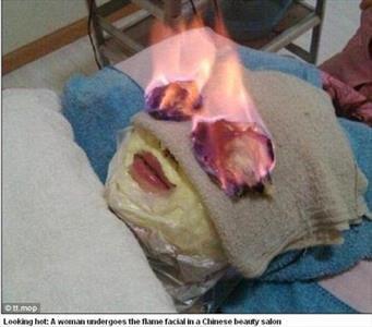 آتش زدن صورت