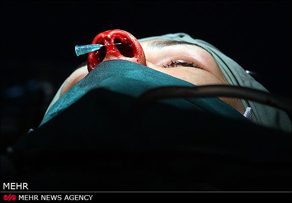 """"""" تصاویر ِ جراحی پلاستیک بینی +  16 """""""