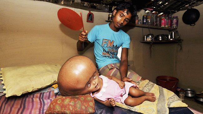 960529 india health social poverty hydrocephalus بد شانس ترین دختر دنیا! +تصاویر