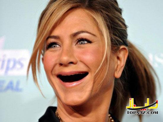 زنان هالیوودی بدون دندان