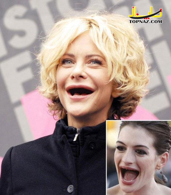 زنان زیبای هالیوودی بدون دندان