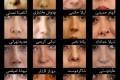 کدام بازیگران ایرانی دماغ عملی هستند؟ +عکس
