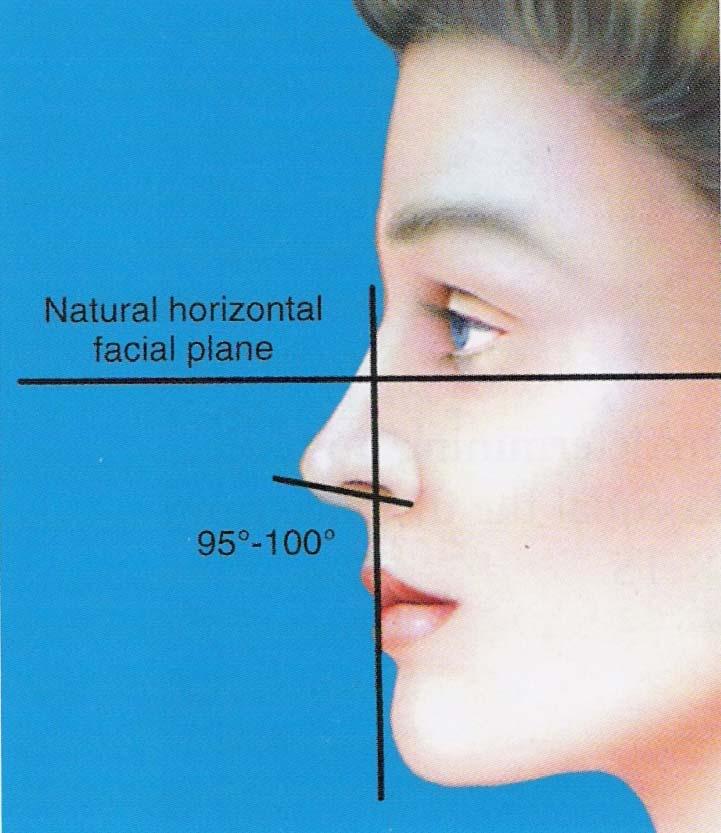مشخصات بینی طبیعی2
