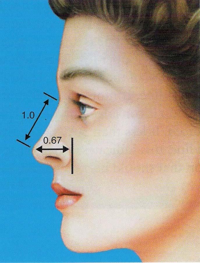 مشخصات بینی طبیعی3