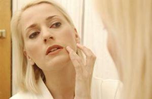 درمان جوش سرسیاه, جوش و آکنه, درمان جوش چرکی, جوش صورت