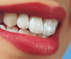 دندان سفید, مسواک و دندان سفید
