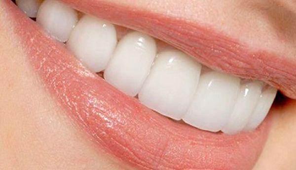 15 چیز که باعث پوسیدگی بیشتر دندان می شود!