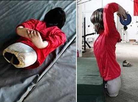 دختری با بدن نصفه