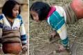 داستان زندگی دختری با بدن نصفه! +عکس