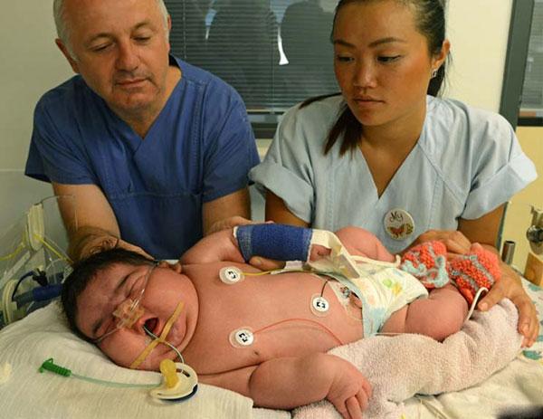 تولد بزرگترین نوزاد دنیا بدون سزارین!