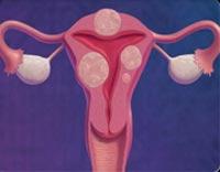 علت درد پائین شکم,علت درد زیر شکم,بیماریهای زنان