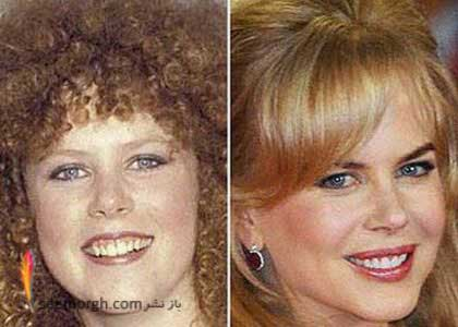 ستاره های هالیوود , نیکول کیدمن , آنجلینا جولی