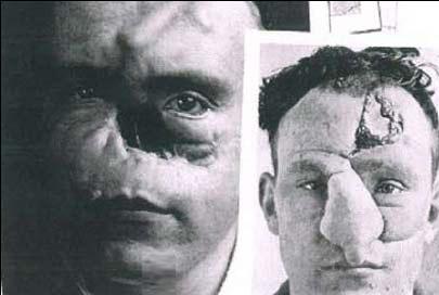 اولین عمل جراحی زیبایی بینی در دنیا