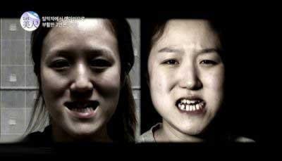 عکس دو خواهر زشت پس از عمل زیبایی