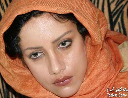 عکس شراره رخام قبل از عمل زیبایی