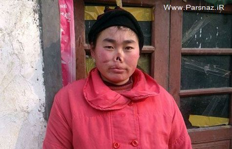 این دختر چینی لب و دماغش توسط موش خورده شد