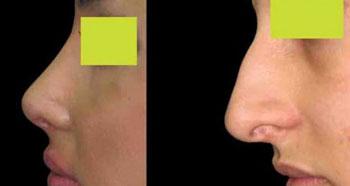انواع بینی و جراحی بینی