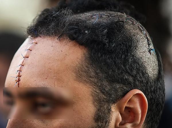 خالکوبی و زخمهای اشرار تهران
