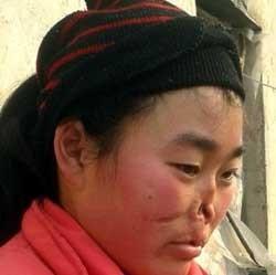 لب و بینی این دختر چینی توسط موش خورده شد!! +عکس