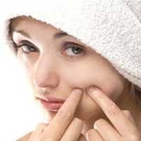 درمان جوش صورت در دوران بلوغ