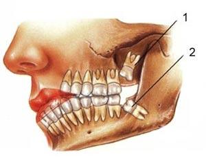 چرا دندان عقل را بايد کشيد؟