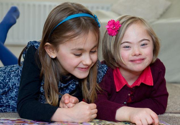 عجيبترين خواهران دوقلوي دنيا